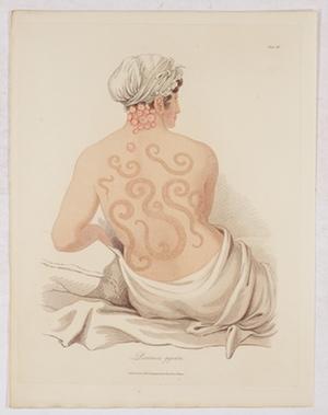 Psoriasis singlar
