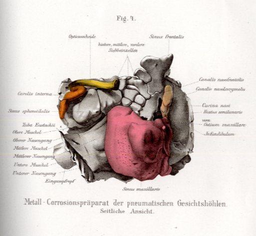Preiswerk, Gustav Beiträge zur Corrosionsanatomie der pneumatischen ...