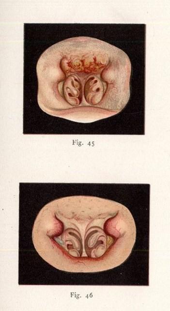 Grünwald, Ludwig Atlas der Krankheiten der Mundhöhle, des Rachens ...