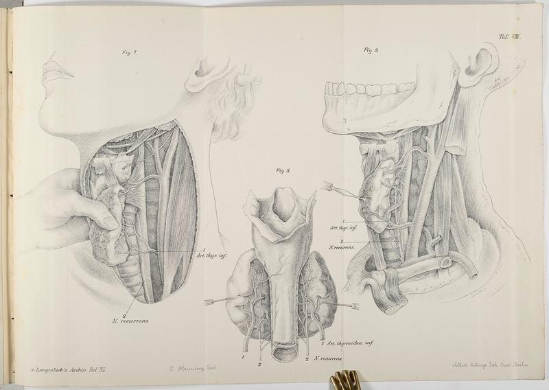 Wölfler, Anton Zur chirurgischen Anatomie und Pathologie des Kropfes ...